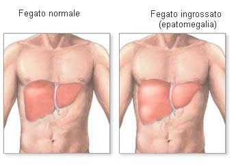 fegato-ingrossato-2.jpg